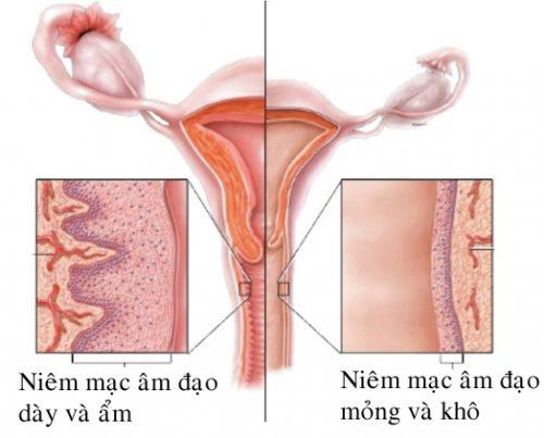 Image result for teo âm đạo